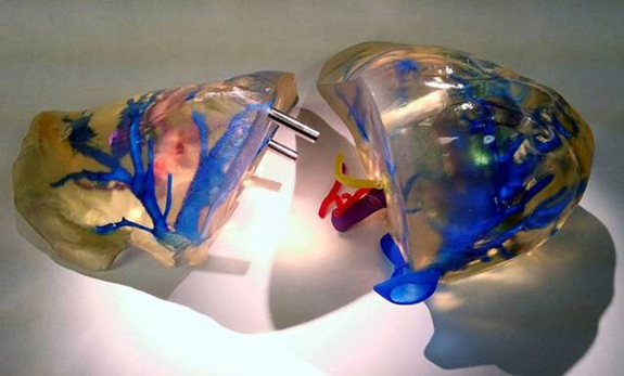 """Remarkable advances in 3D """"bioprinting"""" live tissues"""